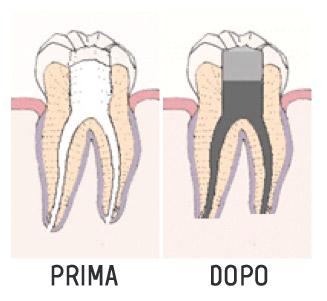 endodonzia-prima_dopo