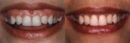 Gummy smile prima e dopo l'allungamento  mircrochirurgico dei denti tramite laser