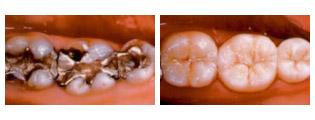 Otturazioni di amalgama risanate in modo estetico e biocompatibile con delle corone in ceramica