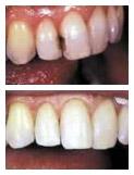 Otturazioni infiltrate di denti frontali cariati, prima e dopo il trattamento con otturazioni in composito