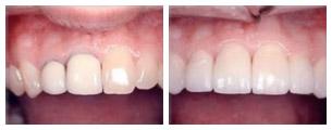 Prima e dopo il trattamento dei denti incisivi con corone in ceramica integrale