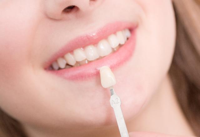 Migliorare il sorriso con le faccette di ceramica | Stomatologica