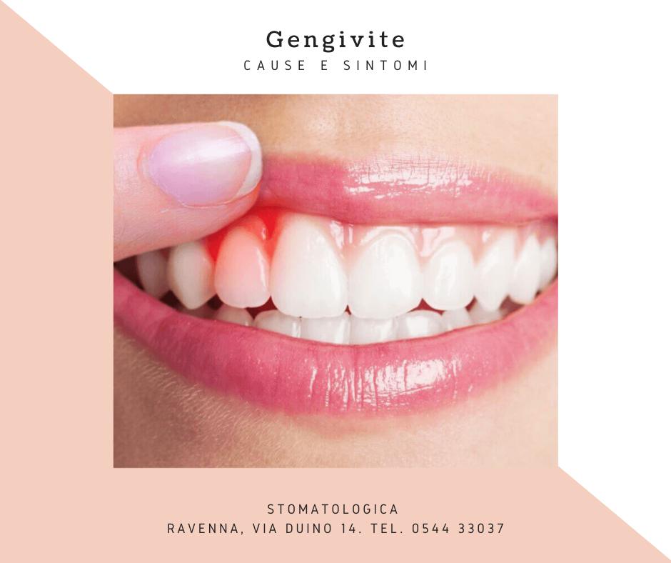 Che cos'è la Gengivite? | Stomatologica Ravenna